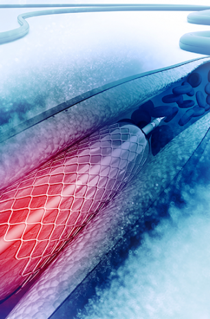Free your heart – Your guide to stents and their lifesaving benefits