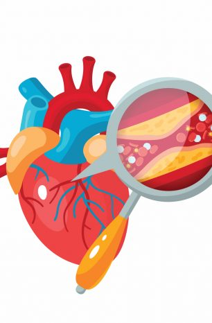 Coronary artery blockage: A guide to its symptoms and treatments