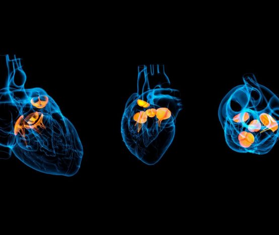 Your Guide to Transcatheter Aortic Valve Replacement: What To Expect When You Undergo One